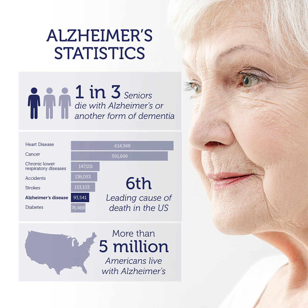 Is There A Test For Alzheimers >> DNA Alzheimer's Disease Test | DNA in the News