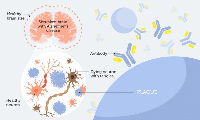Alzheimer's cure antibodies
