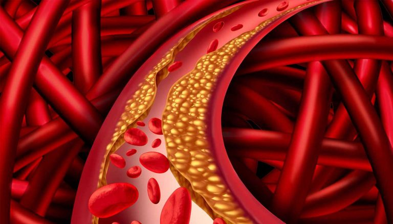 Familial Hypercholesterolemia – The Story of Genetics, 'Bad' Cholesterol and Heart Disease